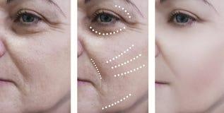 Η γυναίκα ζαρώνει πριν και μετά από τις επεξεργασίες αναζωογόνησης στοκ εικόνα με δικαίωμα ελεύθερης χρήσης
