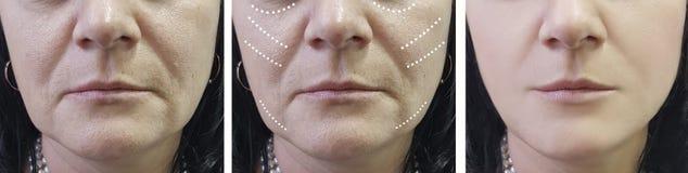 Η γυναίκα ζαρώνει πριν και μετά από cosmetology τις επεξεργασίες αναζωογόνησης χειρούργων επεξεργασίας στοκ φωτογραφία