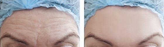 Η γυναίκα ζαρώνει τη διόρθωση μετώπων πριν και μετά από τις διαδικασίες στοκ εικόνες με δικαίωμα ελεύθερης χρήσης