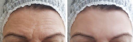 Η γυναίκα ζαρώνει το μέτωπο πριν και μετά από τις διαδικασίες στοκ φωτογραφίες με δικαίωμα ελεύθερης χρήσης