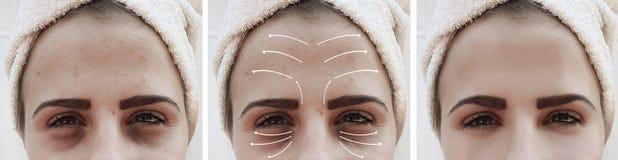 Η γυναίκα ζαρώνει το πρησμένο cosmetology επίδρασης πρόσωπο biorevitalization πριν και μετά από τις διαδικασίες, διόρθωση στοκ εικόνες