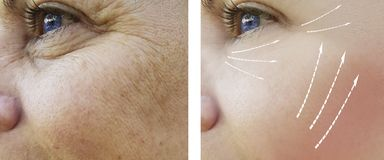 Η γυναίκα ζαρώνει cosmetology διορθώσεων τη χρώση ώριμη πριν και μετά από τις διαδικασίες αναζωογόνησης που ανυψώνει, θεραπεία στοκ εικόνες με δικαίωμα ελεύθερης χρήσης