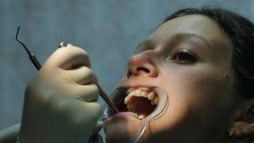 Η γυναίκα μεταχειρίζεται τα δόντια με ένα orthodontic fixator στο στόμα της κοντά επάνω οδοντίατρος που επισκέ&pi απόθεμα βίντεο