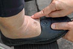 Η διόγκωση των αστραγάλων και των ποδιών δοκιμής με την ώθηση του δάχτυλου στην πρησμένη περιοχή θα εμφανιστεί ένα κοίλωμα στοκ εικόνα με δικαίωμα ελεύθερης χρήσης