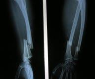 Η εικόνα ακτίνας X του σπασμένου αντιβράχιου, το AP και η πλευρική άποψη παρουσιάζουν σπάσιμο Στοκ φωτογραφία με δικαίωμα ελεύθερης χρήσης