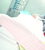 Ηλεκτροκαρδιογράφημα σε ένα υπόβαθρο σοβαρά άρρωστου Στοκ εικόνες με δικαίωμα ελεύθερης χρήσης