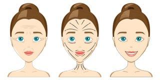 Η επίδραση του δέρματος γυναικών ` s από το μασάζ για το πρόσωπο ενάντια στο wri ελεύθερη απεικόνιση δικαιώματος