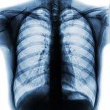 Η θωρακική ακτίνα X PA ταινιών παρουσιάζει κατακόρυφα κανονικό ανθρώπινο στήθος Στοκ φωτογραφία με δικαίωμα ελεύθερης χρήσης