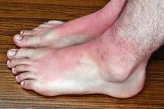 Ηλιακό έγκαυμα στα πόδια Στοκ Εικόνες