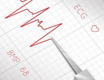 Η καρδιά κτυπά τη διαδικασία καρδιογραφημάτων ελεύθερη απεικόνιση δικαιώματος