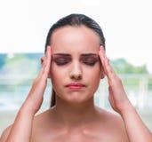 Η νέα γυναίκα που κρατά τους ναούς της με τον πονοκέφαλο στοκ εικόνα