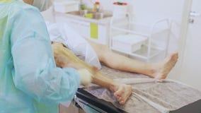 Η νοσοκόμα στα αποστειρωμένα ενδύματα απολυμαίνει το υπομονετικό πόδι πριν από τη χειρουργική επέμβαση κιρσωδών φλεβών φιλμ μικρού μήκους