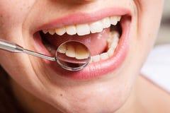 Η οδοντιατρική, οδοντικός, το στόμα και τα δόντια κλείνουν επάνω να χαμογελάσουν στοκ εικόνα