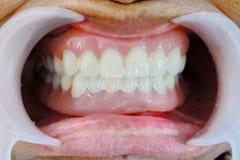 Η οδοντοστοιχία Στοκ Φωτογραφίες