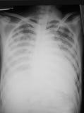 Η προσθιοπίσθια (AP) όψη θωρακικών ταινιών ενός χρονών ατόμου 32, κατέδειξε την καρδιακή διεύρυνση και διάχυτο διμερή ινο-κονδυλώδ Στοκ Εικόνες