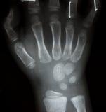 Η ταινία ακτινοσκοπεί και το δύο AP χεριών: παρουσιάστε κανονικό ανθρώπινο ` s Στοκ φωτογραφίες με δικαίωμα ελεύθερης χρήσης
