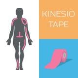 Η ταινία Kinesio βελτιώνει τη στάση και μειώνει τη διόγκωση ελεύθερη απεικόνιση δικαιώματος