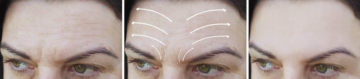 Η του προσώπου διόρθωση ρυτίδων γυναικών οδηγεί πριν και μετά από την αφαίρεση διαδικασιών στοκ εικόνες