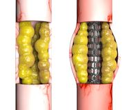 Η χειρουργική επέμβαση παράκαμψης στεφανιαίων αρτηριών, είναι μια χειρουργική διαδικασία για να αποκαταστήσει την κανονική ροή αί ελεύθερη απεικόνιση δικαιώματος