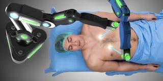 Η χειρουργική επέμβαση που εκτελείται από το ρομποτικό βραχίονα Στοκ εικόνα με δικαίωμα ελεύθερης χρήσης