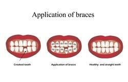 Η χρήση των στηριγμάτων στριμμένα δόντια orthodontics Infographics Διανυσματική απεικόνιση στο υπόβαθρο διανυσματική απεικόνιση