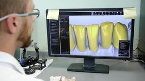 Η ψηφιακή διαμόρφωση των οδοντοστοιχιών, εργαστηριακός εργαζόμενος αναπτύσσει το πρότυπο του σαγονιού στον υπολογιστή απόθεμα βίντεο
