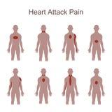 Θέση πόνου επίθεσης καρδιών ελεύθερη απεικόνιση δικαιώματος