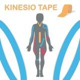 Θεραπεία με kinesiology την ταινία Σώμα και ένα μίγμα παραδείγματος επίσης corel σύρετε το διάνυσμα απεικόνισης διανυσματική απεικόνιση