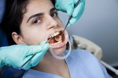 θεραπεία οδοντική Στοκ εικόνα με δικαίωμα ελεύθερης χρήσης