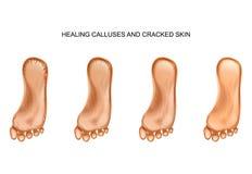 Θεραπεία calluses και ραγισμένα τακούνια απεικόνιση αποθεμάτων