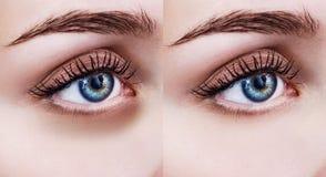 Θηλυκά μάτια με τους μώλωπες κάτω από τα μάτια πριν και μετά από την επεξεργασία στοκ εικόνα με δικαίωμα ελεύθερης χρήσης