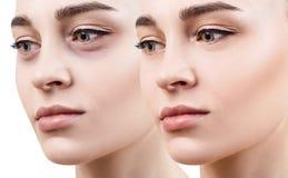 Θηλυκά μάτια με τους μώλωπες κάτω από τα μάτια πριν και μετά από την καλλυντική επεξεργασία στοκ εικόνες
