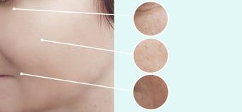 Θηλυκές ρυτίδες ομορφιάς πριν μετά από τις επεξεργασίες έντασης επίδρασης beautician κολάζ στοκ εικόνα