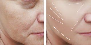 Θηλυκές του προσώπου ρυτίδες πριν και μετά από τις διαδικασίες στοκ φωτογραφίες