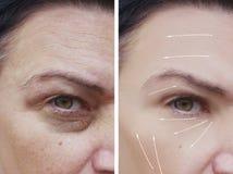 Θηλυκές του προσώπου ρυτίδες πριν και μετά από το βέλος διαδικασιών αφαίρεσης διαφοράς διορθώσεων στοκ φωτογραφία με δικαίωμα ελεύθερης χρήσης