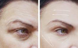 Θηλυκές του προσώπου ρυτίδες πριν και μετά από το βέλος διαδικασιών αφαίρεσης διαφοράς στοκ φωτογραφία με δικαίωμα ελεύθερης χρήσης