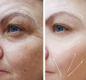 Θηλυκές του προσώπου ρυτίδες πριν και μετά από το βέλος διαδικασιών στοκ φωτογραφία με δικαίωμα ελεύθερης χρήσης