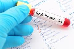 Θηλυκή δοκιμή ορμονών Στοκ Φωτογραφία
