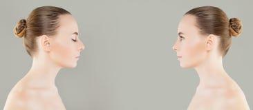 Θηλυκή μύτη πριν και μετά από τη αισθητική χειρουργική ή το ρετουσάρισμα Στοκ φωτογραφίες με δικαίωμα ελεύθερης χρήσης