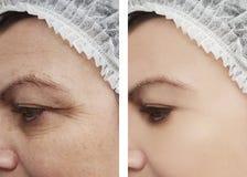 Θηλυκή υπομονετική διαδικασία ρυτίδων ματιών πριν μετά από cosmetology θεραπειών στοκ εικόνα με δικαίωμα ελεύθερης χρήσης