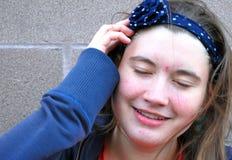 Θηλυκός έφηβος με την ακμή Στοκ εικόνες με δικαίωμα ελεύθερης χρήσης