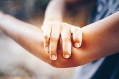 Θηλυκό που έχει τον πόνο στον τραυματισμένο βραχίονα Στοκ φωτογραφία με δικαίωμα ελεύθερης χρήσης