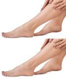 Θηλυκά πόδια με τις ρωγμές Στοκ φωτογραφία με δικαίωμα ελεύθερης χρήσης