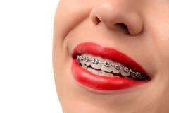 Θηλυκό ανοικτό στόμα που παρουσιάζει στηρίγματα μετάλλων στοκ φωτογραφία με δικαίωμα ελεύθερης χρήσης