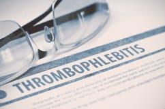 Θρομβοφλεβίτιδα Ιατρική τρισδιάστατη απεικόνιση Στοκ Εικόνα