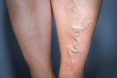 Θρομβοφλεβίτιδα στο ανθρώπινο πόδι Στοκ φωτογραφίες με δικαίωμα ελεύθερης χρήσης