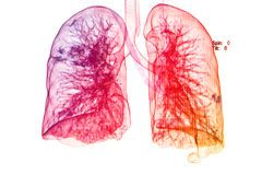 Θωρακικές ακτίνες X κάτω από την τρισδιάστατη εικόνα, τρισδιάστατη εικόνα πνευμόνων Στοκ Εικόνες