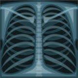 Θωρακική ακτίνα X διανυσματική απεικόνιση