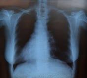 Θωρακική των ακτίνων X ανίχνευση Στοκ εικόνα με δικαίωμα ελεύθερης χρήσης