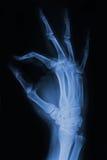 ιατρική ακτίνα Χ χεριών λεπτομέρειας Στοκ φωτογραφία με δικαίωμα ελεύθερης χρήσης